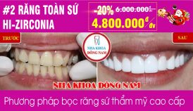 Khuyến mãi răng sứ Hi-Zirconia nhân dịp noel và tết tây 2019