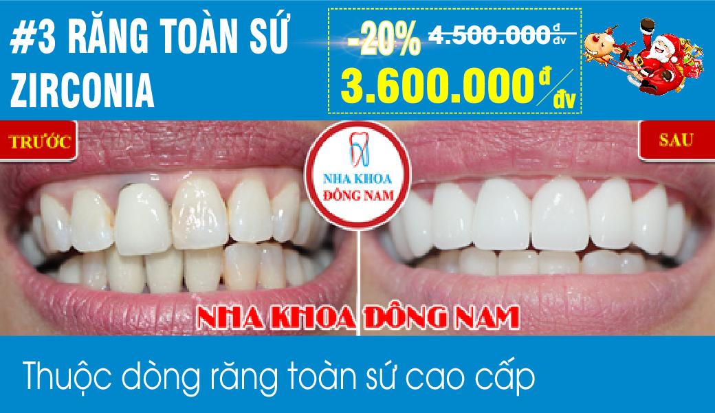 Khuyến mãi răng toàn sứ Zirconia nhân dịp noel và tết tây 2019