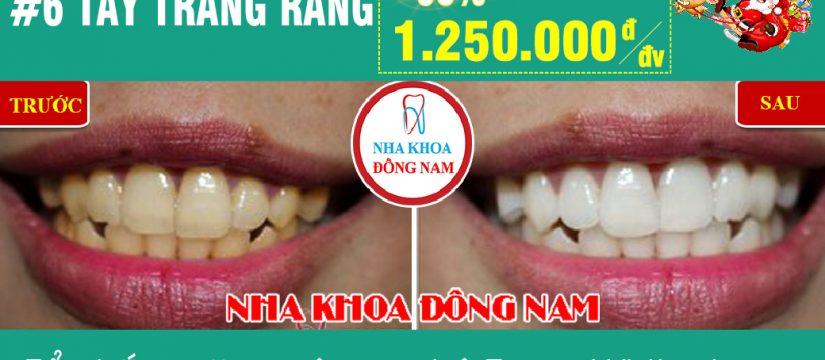 Khuyến mãi tẩy trắng răng nhân dịp noel và tết tây 2019