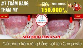 Khuyến mãi trám răng nhân dịp noel và tết tây 2019