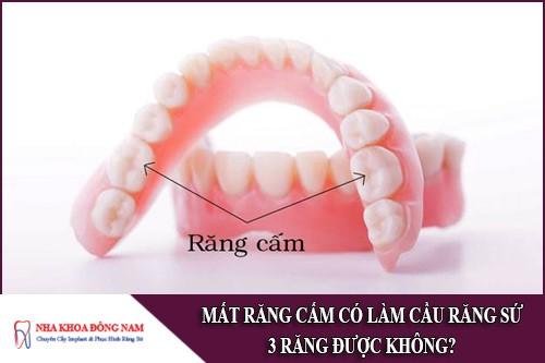 mất răng cấm có làm cầu răng sứ 3 răng được không