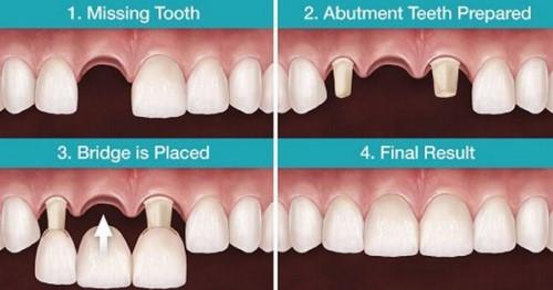 làm cầu răng sứ 3 răng