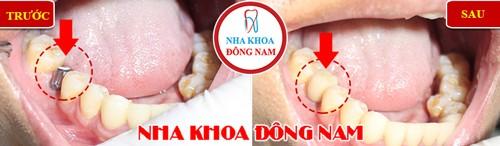 cấy implant khi mất răng cấm