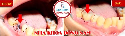 trồng răng hàm