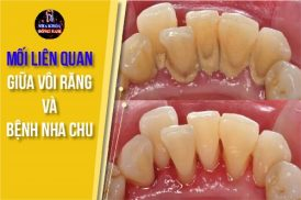 mối liên quan giữa vôi răng và bệnh nha chu