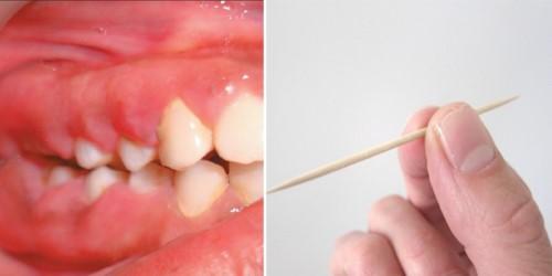 tăm xỉa răng