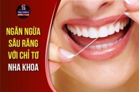 ngăn ngừa sâu răng với chỉ tơ nha khoa