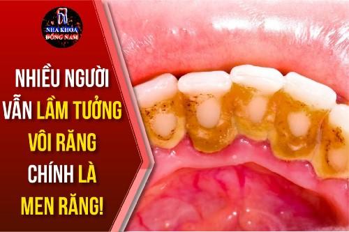 nhiều người vẫn lầm tưởng vôi răng chính là men răng