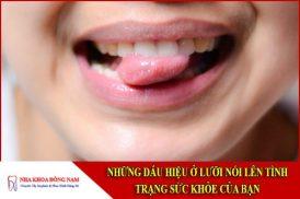 Những dấu hiệu ở lưỡi nói lên tình trạng sức khỏe của bạn