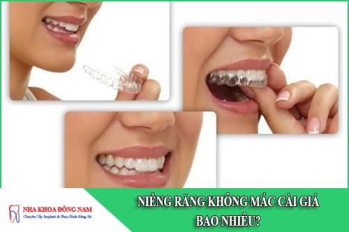 niềng răng không mắc cài giá bao nhiêu