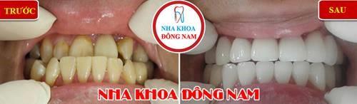 bọc sứ chữa răng móm