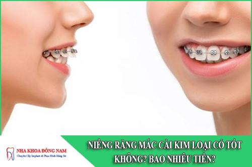 niềng răng mắc cài kim loại có tốt không
