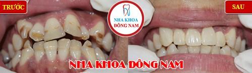 bọc sứ chỉnh răng mọc không đều