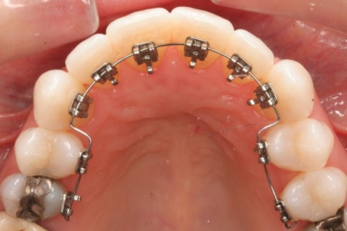niềng răng mặc trong