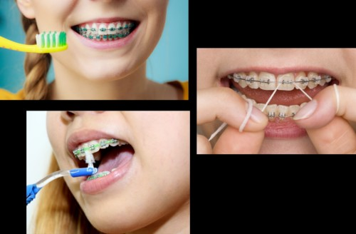 dụng cụ vệ sinh răng niềng