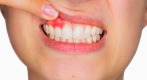 có nên tẩy trắng răng bằng oxy già
