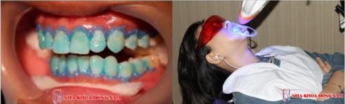 tẩy trắng răng tại nha khoa đông nam