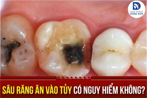 sâu răng ăn vào tủy có nguy hiểm không