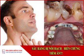 sâu răng bị nổi hạch