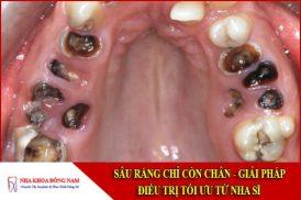 giải pháp điều trị sâu răng chỉ còn chân