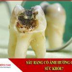 sâu răng có ảnh hưởng gì đến sức khỏe