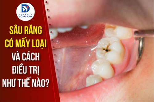 sâu răng có mấy loại