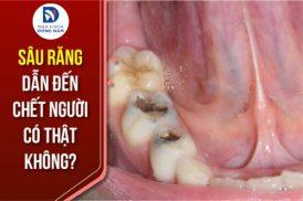 sâu răng dẫn đến chết người có thật không
