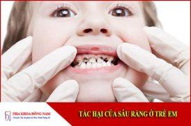 tác hại của sâu răng ở trẻ em