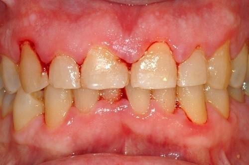 viêm nhiễm nướu răng