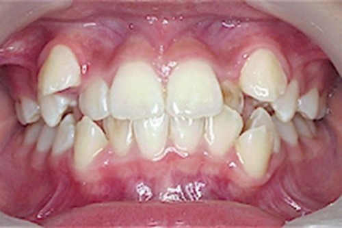 răng mọc lệch lạc