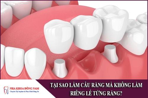 Tại sao làm cầu răng mà không làm riêng lẻ từng răng