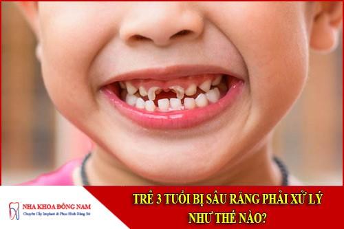 trẻ 3 tuổi bị sâu răng phải xử lý thế nào