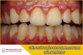 viêm nướu chân răng khi mang thai xử lý thế nào