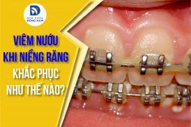 viêm nướu khi niềng răng khắc phục như thế nào