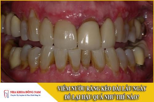 viêm nướu răng kéo dài lâu ngày