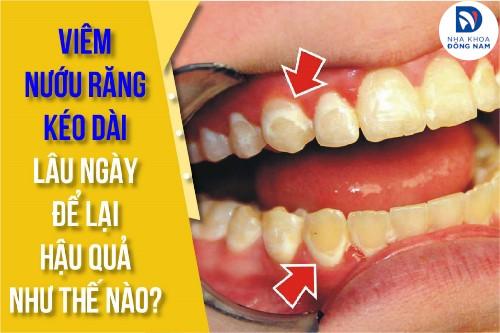 viêm nướu răng kéo dài lâu ngày để lại hậu quả như thế nào