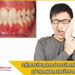 viêm nướu răng ở người lớn