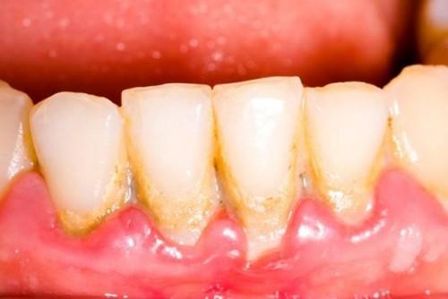 mảng bám vôi răng