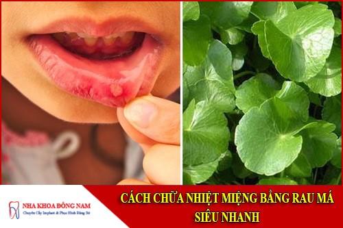 cách chữa nhiệt miệng bằng rau má