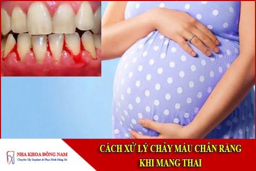 cách xử lý chảy máu chân răng khi mang thai