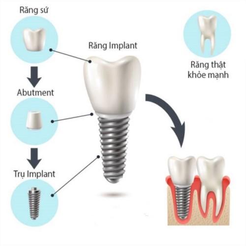 cấu tạo của răng imlant