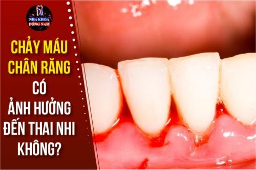 chảy máu chân răng có ảnh hưởng đến thai nhi không