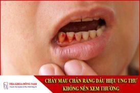 chảy máu chân răng dấu hiệu ung thư