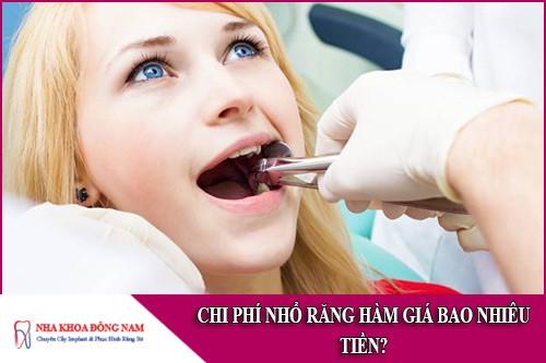 chi phí nhổ răng hàm giá bao nhiêu tiền