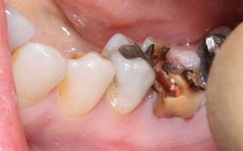 răng bị sâu nặng