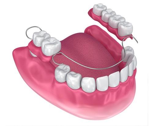 trồng răng hàm bằng răng tháo lắp