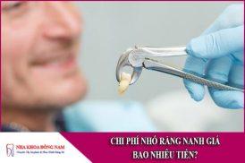 chi phí nhổ răng nanh giá bao nhiêu tiền