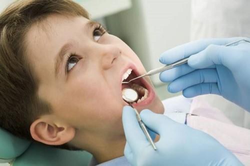 chỉ định nhổ răng sữa