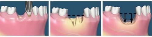 tiêu xương hàm sau khi nhổ răng