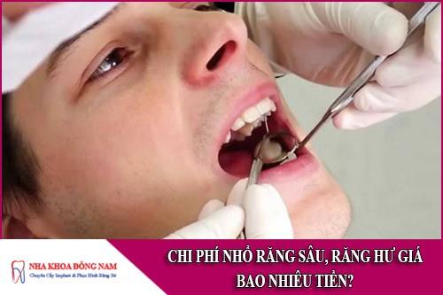 chi phí nhổ răng sâu, răng hư giá bao nhiêu tiền